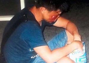 中国儿童被拐马来西亚行乞 手脚被打断面目全非