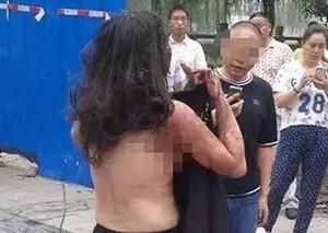 男子当街泼油烧前妻 路人帮忙扒衣服